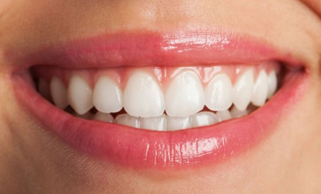 Smiling after dental veneers in turkey